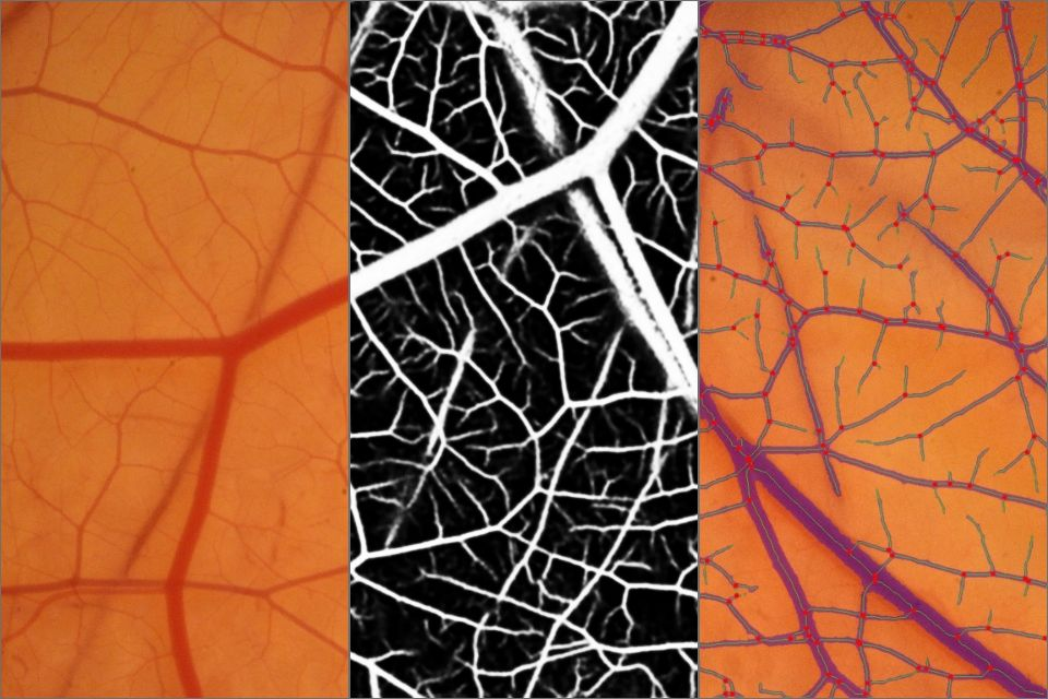 Angiogenesis and Artificial Intelligence, a long-overdue match